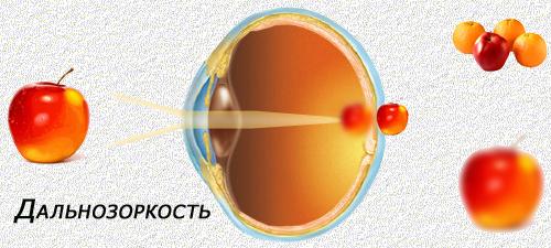 Цены на лазерную коррекцию зрения в к